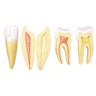 Teeth Models, 10X Mag, 5 Pc. Incisor, Canine & Molar.